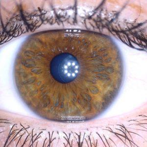 iridologist gold coast
